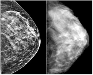 pic-digital-vs-film-mammography